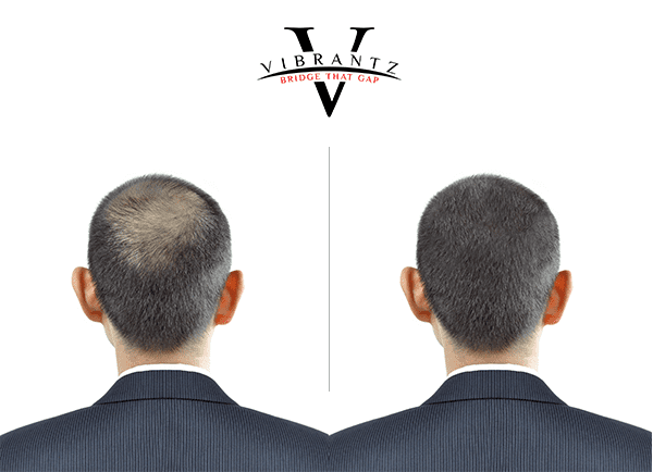 Before And After Use Of Vibrantz Hair Fibres